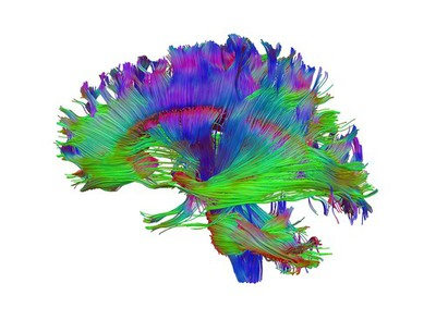 Image from object titled Healthy human adult brain viewed from the side, tractography