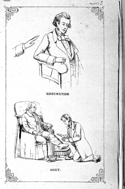 Rheumatism, gout treated by mesmerism