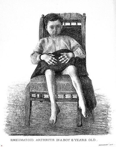 Image from object titled Lane, Differentiation..., 1892: boy suffering from arthritis
