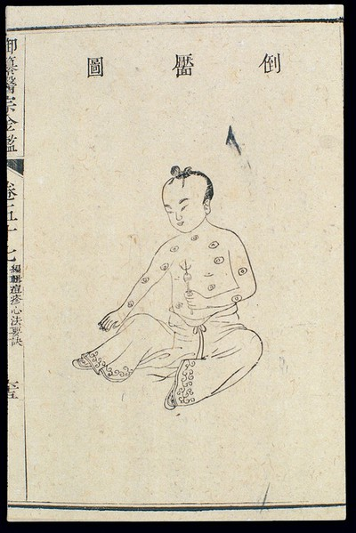 Image from object titled Chinese C18: Paediatric pox - 'Inverted Dimple' pox