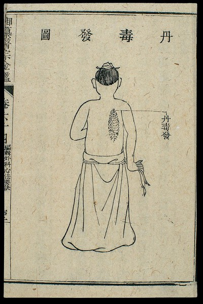 Image from object titled Chinese C18 woodcut: External medicine - Erysipelas
