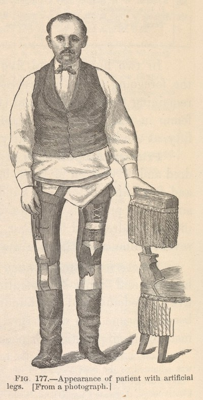 Image from object titled Fig. 177 - Appearance of patient with artificial legs.