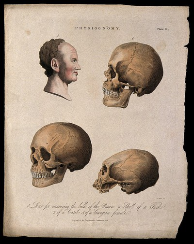 Image from object titled A profile of a man bisected with a curve for measuring the brain, skulls of a Turk (top right), a Georgian female (bottom left) and a Caribbean (bottom right). Coloured engraving by H. Adlard, 1824.
