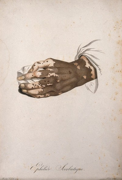 Image from object titled A hand with a skin disease. Coloured stipple engraving by S. Tresca after Moreau-Valvile, c. 1806.