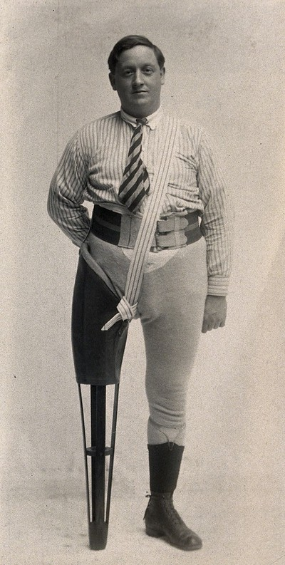 Image from object titled A man with a wooden leg prosthesis. Photograph, ca. 1915.