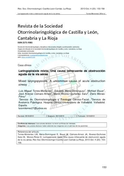 Laringopiocele mixtouna causa infrecuente de obstrucción aguda de la vía aérea; Mixed laryngopyocele: an uncommon cause of acute obstruction airway