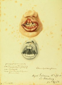 Labium et palatum fissum. Krankenbildnis August Buhmann