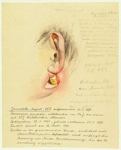 Carcinoma parotidis. Krankenbildnis August Zarnedski