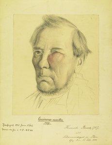 Carcinoma maxillae sup. Krankenbildnis Hinrich Beuck