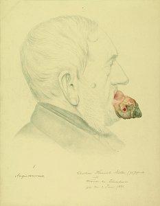Angiosarcoma. Krankenbildnis Christian Heinrich Möller