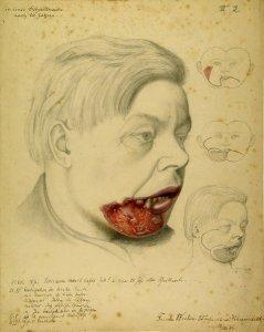 Carcinoma maxill. infer. Krankenbildnis Friedr. Becker