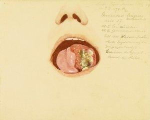 Carcinoma linguae. Krankenbildnis Luise Bäringhausen