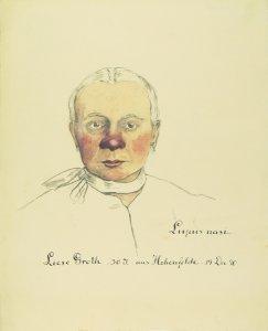 Lupus nasi. Krankenbildnis Liese Groth.