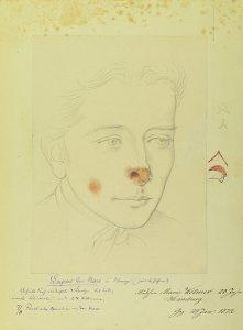 Lupus der Nase und Wange. Krankenbildnis Marie Wölmer