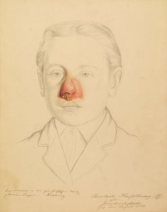 Lupusrezidiv. Krankenbildnis Christoph Hasselbring