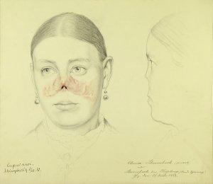 Lupus nasi. Krankenbildnis Anna Sherrebock