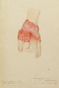 Lupus. Krankenbildnis Charlotte Juhl