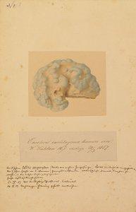 Exostosis cartilaginea humeri sin. Krankenbildnis W. Sühlau