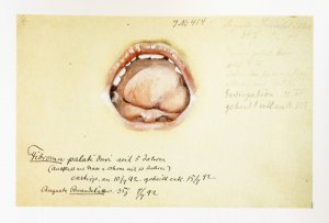 Fibroma palati duri. Krankenbildnis Auguste Brandstätter