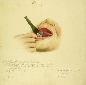 Carcinoma ling. Krankenbildnis Bertheline Petersen
