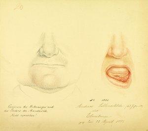 Carcinom des Unterkiefers und des Bodens der Mundhöhle. Krankenbildnis Andreas Sellenschloh