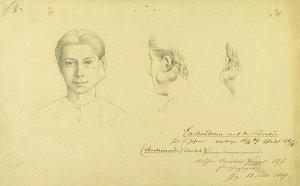 Enchondrom auf der Parotis. Krankenbildnis Christine Wörpel