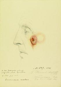 Carcinoma malae. Krankenbildnis F. Hinrich Mißfeldt