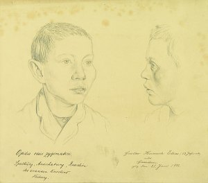 Ostitis ossis zygomatici. Krankenbildnis Gustav Heinrich Elias