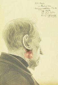 Carcinoma mandibul. recid. Krankenbildnis Fritz Bahr