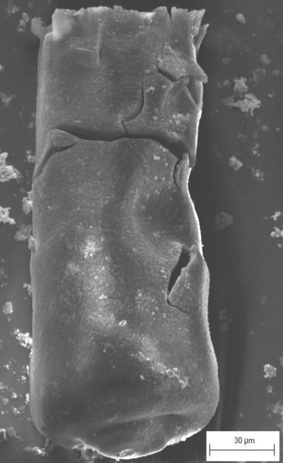 Conochitina aff. cribrosa