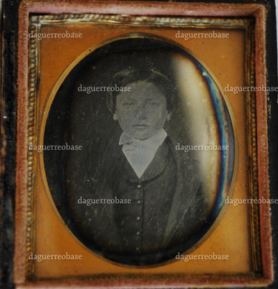 The daguerreotype is in a good conservation condition. There are signs of oxidation and the plate is tarnished. The hinge of the case is broken and secured with Scotch tape.