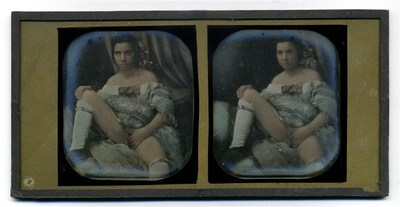 conservation done, tinted, immagine stereoscopica