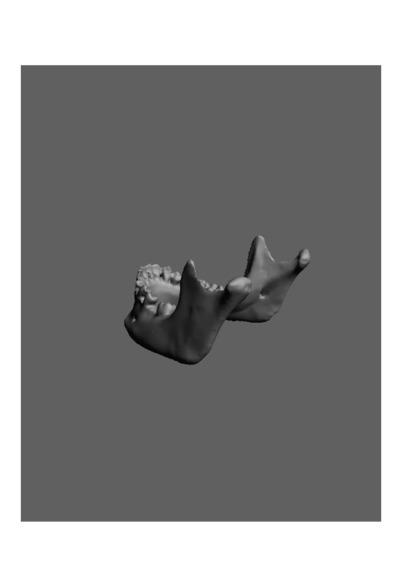 Mandibula humana de uma jovem adulta do sexo feminino, com número de colecção 1674 da colecção de Antropologia Luís Lopes, do Museu Nacional de História Natural e da Ciência, Lisboa, Portugal.