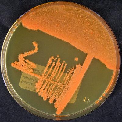 Rhodococcus ruber (Kruse 1896) Goodfellow and Alderson 1977