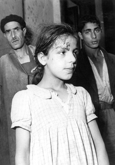 Onze ans. Un autre exemple d'impétigo. Ce serait une jolie petite fille si elle était convenablement soignée. [de 823 à 851 : photos du manuscrit MS 747 F : Les Hadarim de Casablanca, une étude des faits —et en images—préparée par le Bureau de l'American Joint Distribution Committee (Casablanca, septembre 1949).]