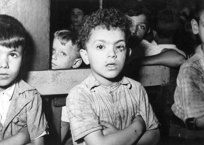 Furonculose non soignée. Le garçon à gauche a l'impétigo. [de 823 à 851 : photos du manuscrit MS 747 F : Les Hadarim de Casablanca, une étude des faits —et en images—préparée par le Bureau de l'American Joint Distribution Committee (Casablanca, septembre 1949).]