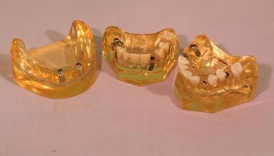 Gebissmodell (3Sk.) mit verschiedenen Dentalimplantaten
