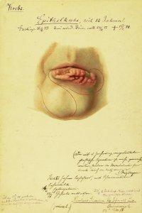 Epithelkrebs. Krankenbildnis Nicolaus Siemsen