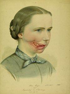 Krankenbildnis Doris Meyer
