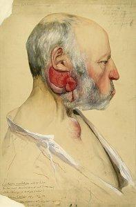 Sarcoma mandibulae. Krankenbildnis Johann Schlüter