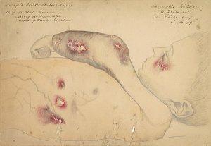 Multiple Ostitis (tuberculosa). Krankenbildnis Magarethe Rehder