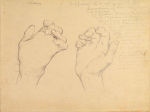 Fingerverkrümmung. Krankenbildnis Amalie Fenske