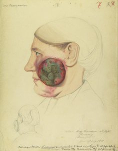 Carcinoma medullare der Wange. Krankenbildnis Marg. Lorentzen