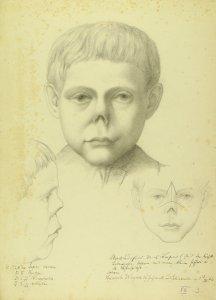 Lupus nasium. Krankenbildnis Heinrich Wegner