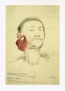 Carcinoma mandibulae. Krankenbildnis Schlüter