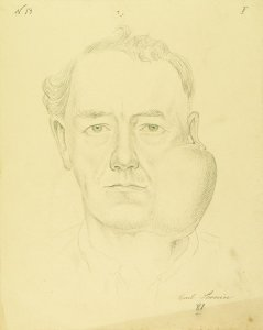 Krankenbildnis Carl Severin