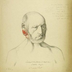 Sarkom d. Mandibula u. d. Kopfnickers. Krankenbildnis Johann Schlüter