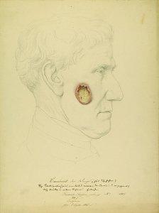 Cancroid der Wange. Krankenbildnis Friedrich Steffen