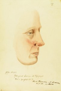 Schrumpfendes Carcinom des Nasenflügels. Krankenbildnis Lucie Kettelsen