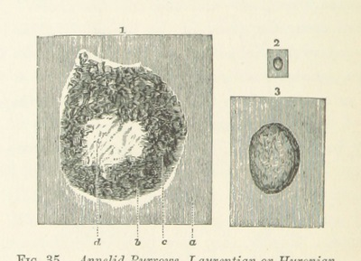 Image from page 170 of Life's Dawn on Earth: being the history of the oldest known fossil remains, and their relations to geological time and to the development of the animal kingdom ... Second thousand